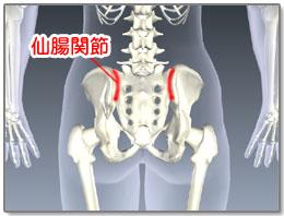 「仙腸関節障害 フリー素材」の画像検索結果